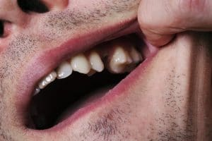Man,showing mouth without tooth (broken) using fingers