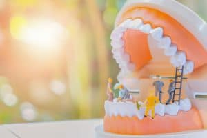 Miniature worker people or small figure cleaning white tooth model as medical and healthcare concept. Cleaning team work on teeth model for dental or dentist idea. Design care health with copy space.